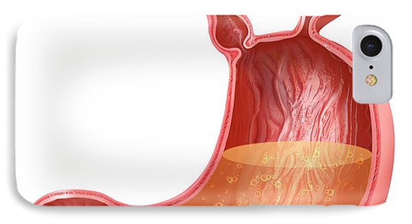 Stomach With Hernia IPhone Case