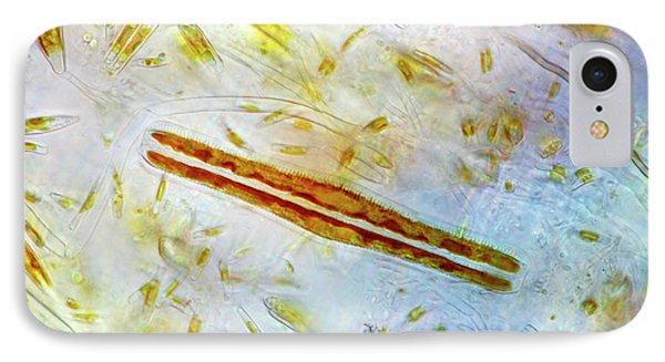 Diatoms IPhone Case by Marek Mis