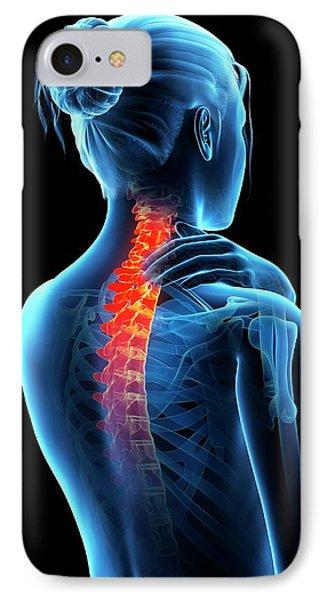 Human Neck Pain IPhone Case