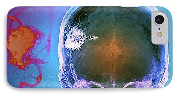 Brain Blood Vessel Malformation IPhone Case