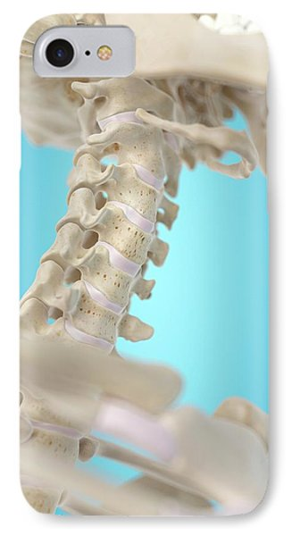 Human Cervical Spine IPhone Case by Sciepro