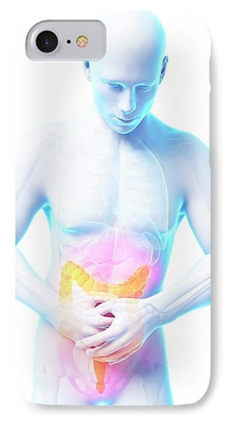 Human Large Intestine Pain IPhone Case