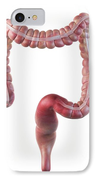 Human Large Intestine IPhone Case by Sciepro