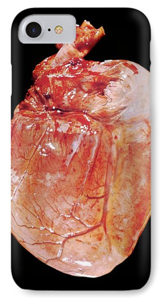 Myocarditis IPhone Case by Pr. M. Forest - Cnri