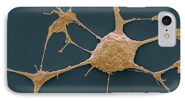 Neurone IPhone Case by Steve Gschmeissner