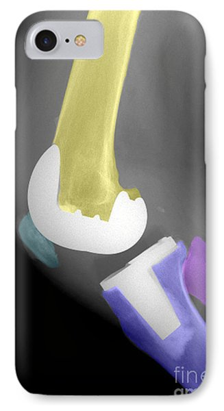 Total Knee Replacement IPhone Case