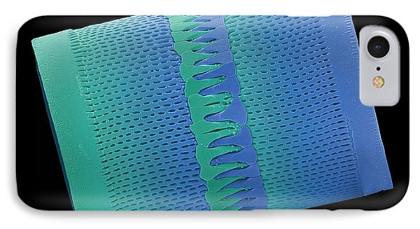 Diatom IPhone Case by Steve Gschmeissner