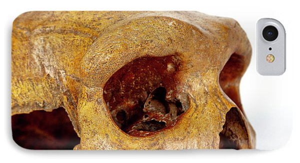 Broken Hill Skull IPhone Case by Natural History Museum, London
