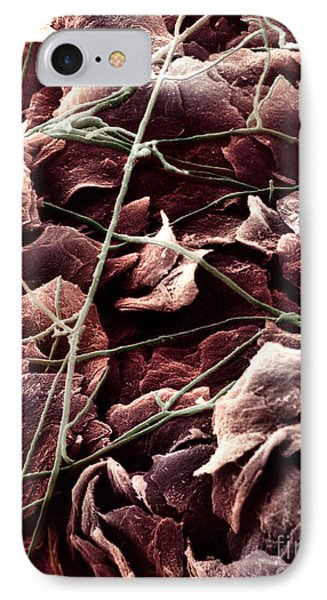 Candida And Epithelial Cells IPhone Case by David M. Phillips
