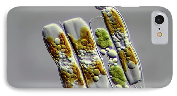 Diatoms IPhone Case by Frank Fox