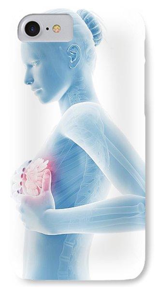 Female Breast Examination IPhone Case by Sebastian Kaulitzki