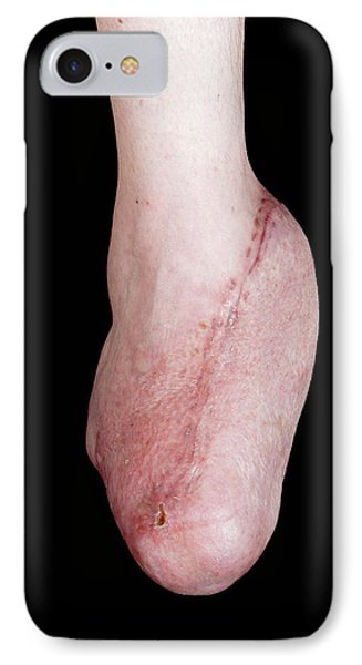 Foot Reconstruction After Toe Amputations IPhone Case by Mid Essex Hospital Services Nhs Trust