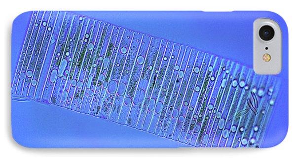 Fragilaria Diatoms IPhone Case by Marek Mis