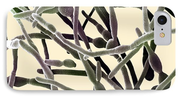 Scanning Electron Micrograph Of Candida IPhone Case by David M. Phillips