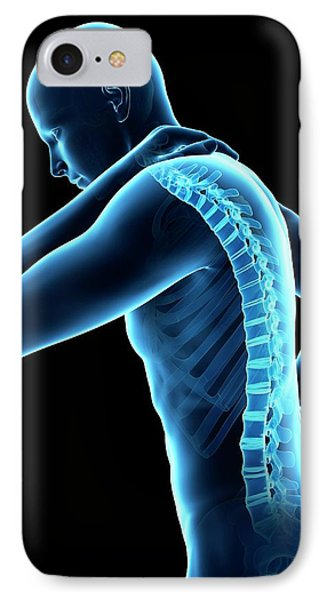 Human Back Pain IPhone Case by Sebastian Kaulitzki