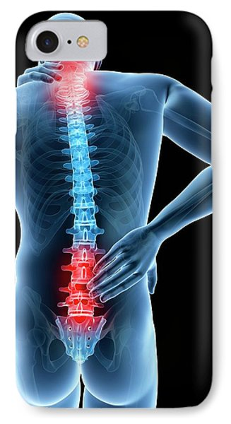 Human Back Pain IPhone Case