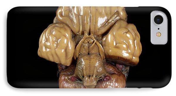 Brain Model IPhone Case by Javier Trueba/msf