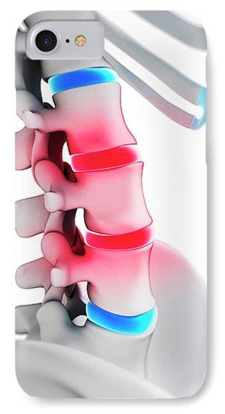 Human Spinal Discs IPhone Case