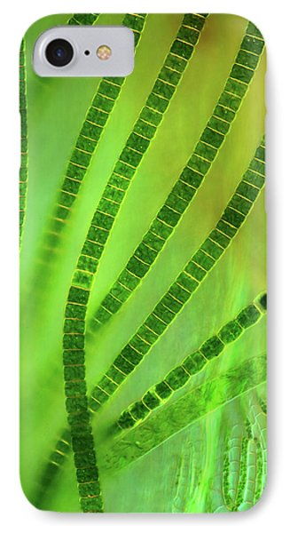 Desmids On Sphagnum Moss IPhone Case
