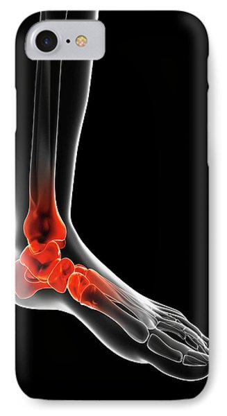 Human Ankle Pain IPhone Case