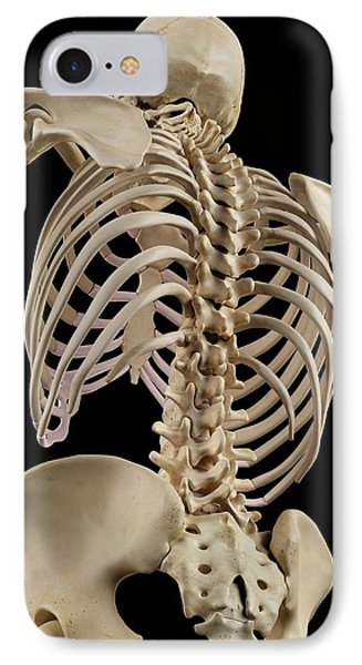 Human Spine IPhone Case by Sciepro