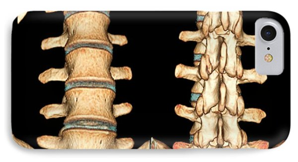 Normal Spine IPhone Case by Zephyr