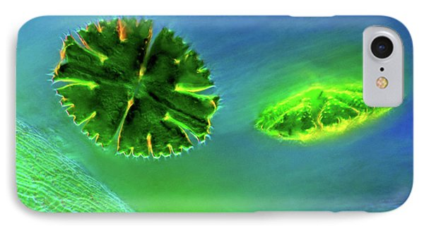 Desmids And Sphagnum Moss IPhone Case
