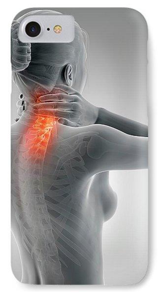 Human Neck Pain IPhone Case by Sebastian Kaulitzki