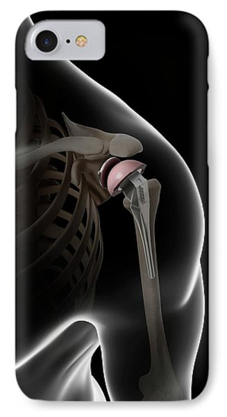 Human Shoulder Replacement IPhone Case
