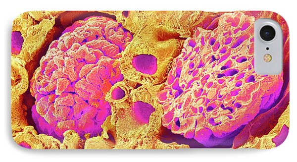 Kidney Glomeruli IPhone Case