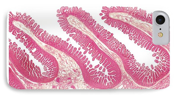 Structure Of Intestinal Tract IPhone Case by Asklepios Medical Atlas