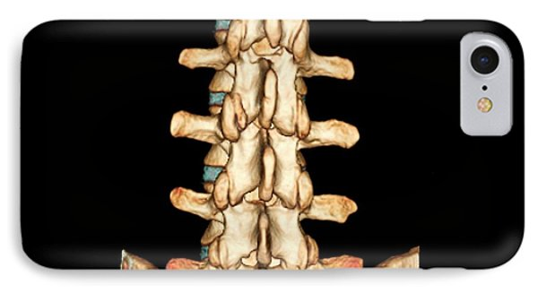 Normal Spine IPhone Case