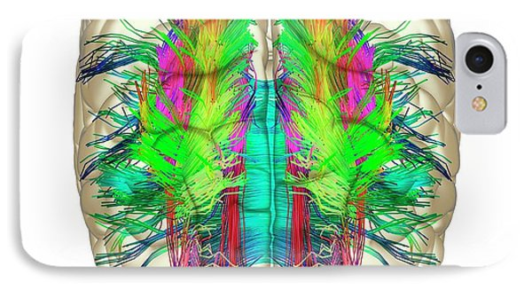 White Matter Fibres And Brain IPhone Case by Alfred Pasieka
