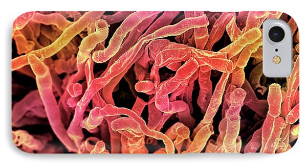 Actinomyces Viscosus Bacteria IPhone Case by Science Photo Library