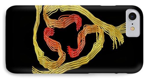 Alzheimer's Beta-amyloid Fibrils IPhone Case by Alfred Pasieka