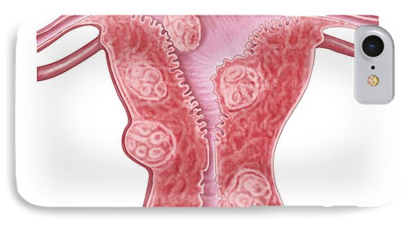 Anatomy Of Fibroid Tumors In Female IPhone Case by Stocktrek Images