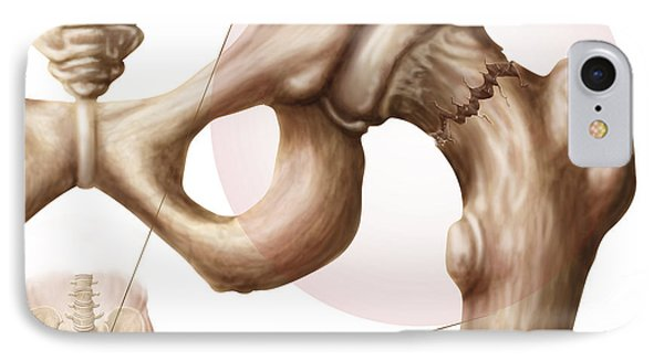 Anatomy Of Hip Fracture Phone Case by Stocktrek Images