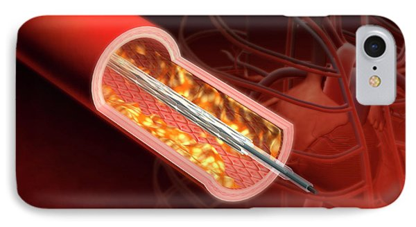 Angioplasty IPhone Case by Harvinder Singh