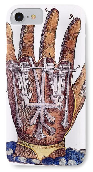 Artificial Hand Designed By Ambroise IPhone Case by Wellcome Images