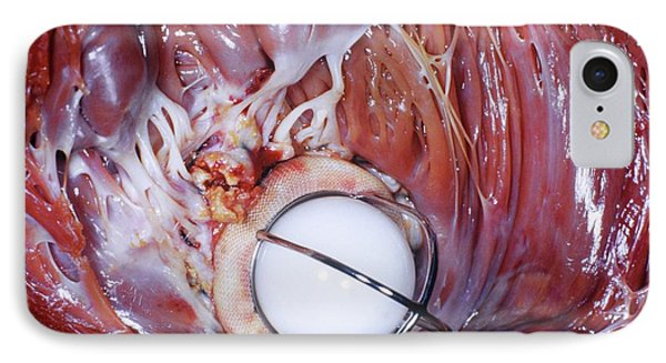 Artificial Heart Valve IPhone Case