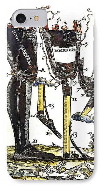 Artificial Legs Designed By Ambroise IPhone Case by Wellcome Images