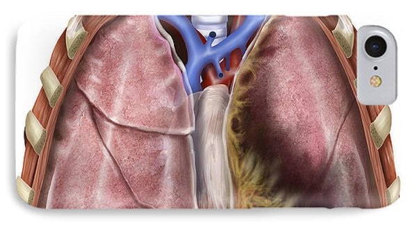Artist Depiction Of Mesothelioma IPhone Case