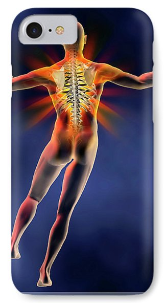 Back Pain IPhone Case by Harvinder Singh