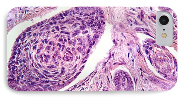 Basal Cell Carcinoma IPhone Case by Garry DeLong