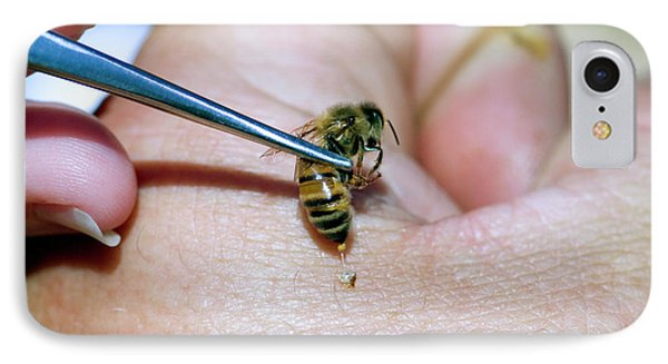 Honeybee iPhone 7 Case - Bee Venom Therapy by Louise Murray/science Photo Library