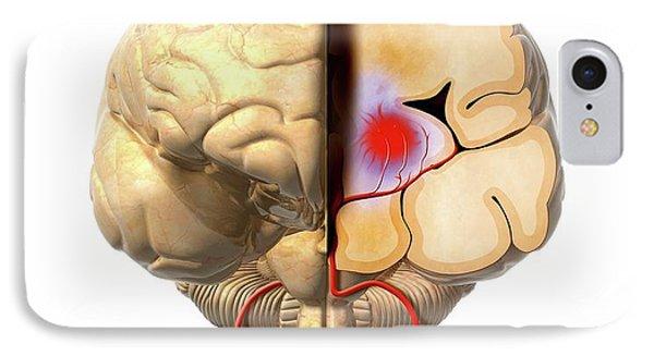 Brain Haemorrhage IPhone Case by Claus Lunau