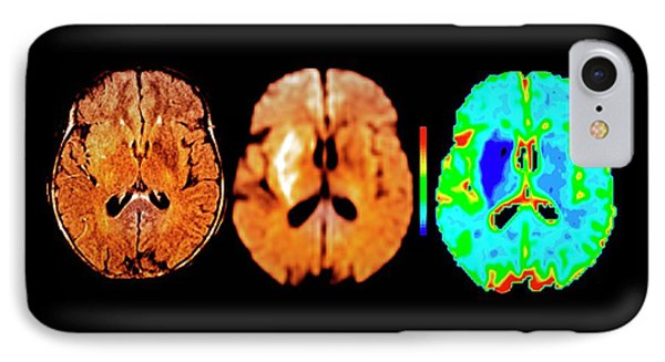 Brain In Ischemic Stroke IPhone Case by Zephyr