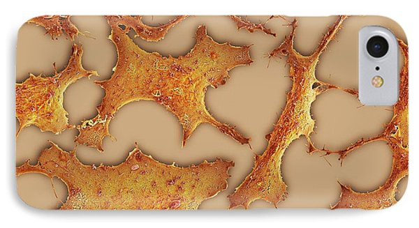 Breast Cancer Cells IPhone Case by Science Photo Library