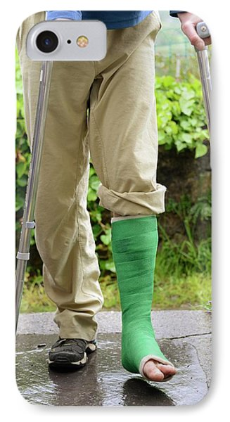 Broken Ankle And Crutches IPhone Case