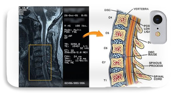Bulging Disc In The Cervical Spine IPhone Case by John T. Alesi